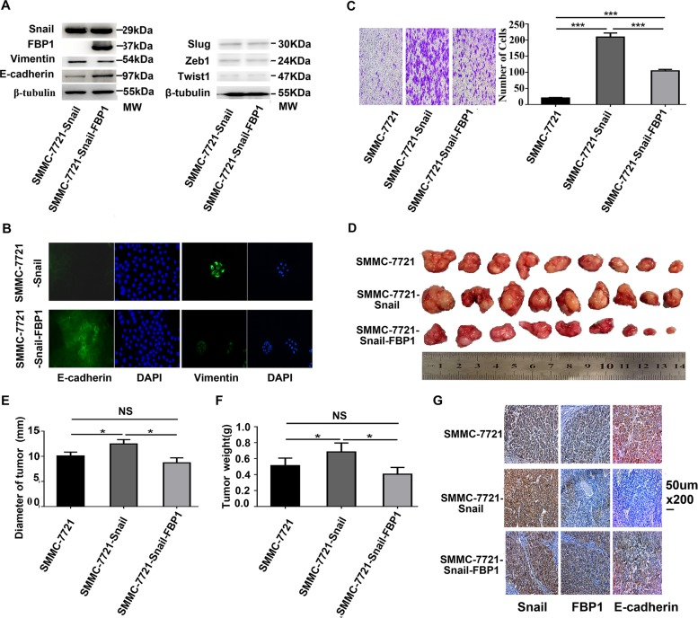 Ectopic FBP1 suppressed Snail-induced EMT and tumour growth in SMMC-7721 cells. a Western blot analysis showed expression changes of E-cadherin and Vimentin induced by Snail expression were hindered by forced expression of FBP1 in SMMC-7721 cells. Ectopic FBP1 expression did not significantly affect Snail, Slug, ZEB1 and Twist1 expression. b Immunofluorescence assay showed SMMC-7721-snail-FBP1 cells expressed higher E-cadherin but lower Vimentin levels and appeared more like epithelial cells than SMMC-7721-Snail cells. The magnifications used were ×200. c Transwell migration analyses showed FBP1 expression significantly inhibited cell migration induced by Snail overexpression in SMMC-7721 cells. d Representative images of day 42 tumours in mice transplanted with SMMC-7721, SMMC-7721-Snail and SMMC-7721-Snail-FBP1. e , f The mean tumour diameters and weights in each group are shown. g The representative images of Snail, FBP1 and E-cadherin expression in transplanted tumours. The magnifications used were ×200. * P