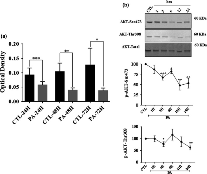 PA‐LTx induced apoptosis and a decrease in AKT phosphorylation in primary Schwann cells (pSC). pSC were treated with BSA alone (control), PA:BSA (2:1) for 24–48 hr. (a) Cell viability was assessed by crystal violet assay. (b) The effect of PA:BSA (2:1) on AKT phosphorylation was examined by Western blot. The pSC cell lysates from control cultures (CTL) exposed to BSA alone and cultures exposed to PA:BSA (2:1) at 1, 3, 6, 12, and 24 hr (hrs.) were prepared and subjected to specific antibodies against AKTp‐Ser473, AKTp‐Thr308 and to total AKT. The blots were then analyzed using the Li‐Cor Odyssey system. A representative Western blot is shown above each bar graph. The data represent mean ± SE of at least four independent experiments. * p
