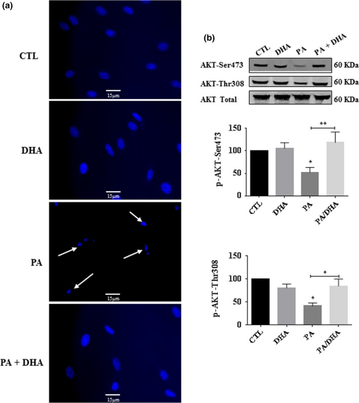 DHA eliminates apoptotic cell death and restores AKT phosphorylation in primary cultured Schwann cells (pSC) under PA‐LTx. pSC were treated with BSA alone (CTL), with PA:BSA (2:1) alone, with DHA (50 µM) alone or co‐treated with PA:BSA (2:1) and DHA (50 µM) for 48 hr. Nuclear morphology was determined by Hoechst staining. Nuclear condensations are indicated with white arrows (a). The pSC culture lysates were prepared and subjected to Western blot analysis using specific antibodies against AKTp‐Ser473, AKTp‐Thr308, and total AKT protein. The blots were then analyzed using the Li‐Cor Odyssey system. A representative Western blot is shown by each bar graph (b). The data represent mean ± SEM of at least four independent experiments. * p