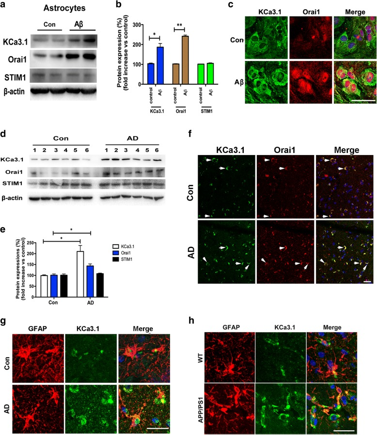KCa3.1 upregulation in Aβ-induced RA and the brains of AD patients. a Primary astrocytes were stimulated with 5 μM Aβ and lysates were subjected to Western blot analysis with antibodies against KCa3.1, Orai1, and STIM1. β-actin was used to confirm equal loading. b Data are presented as the mean ± SEM ( n = 5). The OD values of KCa3.1, Orai1, and STIM1 were normalized to that of β-actin. * p