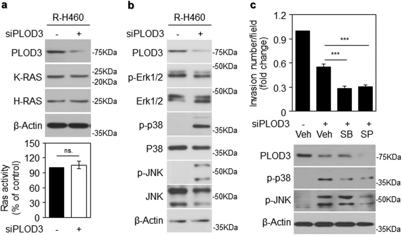 PLOD3-induced metastasis is independent of the RAS-MAPK pathway. a Ras expression assessed via western blot analysis following transfection with siPLOD3 in R-H460 cells (upper). Ras activity was determined via an enzyme-linked <t>immunosorbent</t> assay-based activity assay after siPLOD3 treatment in R-H460 cells (lower, x -axis: siCON, siPLOD3). b Protein levels of MAP kinases were determined via western blotting after siPLOD3 treatment in R-H460 cells. c A cell invasion assay showing that SB and SP have a limited effect on pro-metastatic PLOD3 in R-H460 cells. (upper). Protein levels of indicated proteins determined via western blotting after treatment with siPLOD3 and MAP kinase inhibitor (p38 inhibitor, SB203580 (SB); JNK inhibitor, SP600125 (SP)) in R-H460 cells (lower). Statistical significance was determined by Student's t -test. *** P