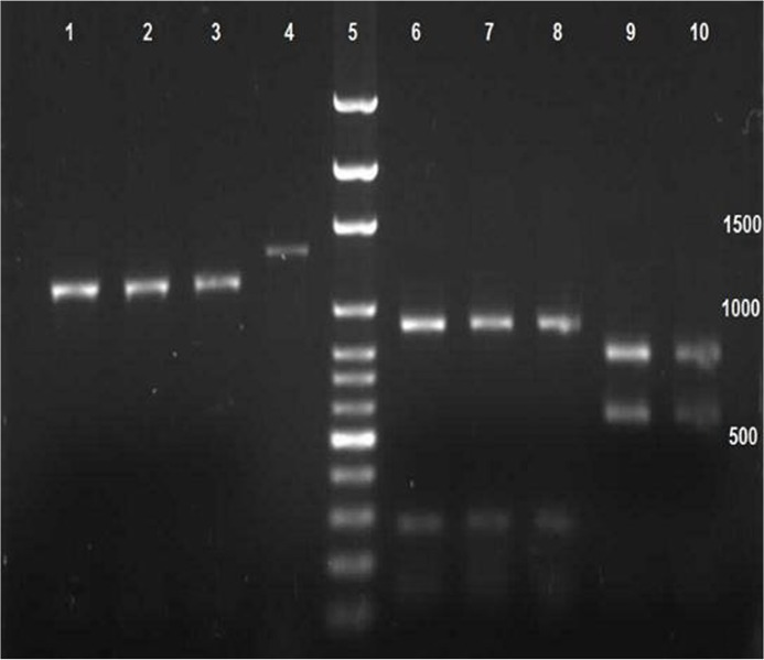 Electrophoretic product of PvAMA-1 gene treated with EcoR I, PvuII, and HindIII, enzymes using RFLP-PCR technique including Columns 1,2 3 treated with EcoRI. Column 4 main bound of Pv AMA-1. Column 5 size marker with 1000bp. Columns 6, 7 and 8 treated with PvuII. Columns 9 10 treated with HindIII
