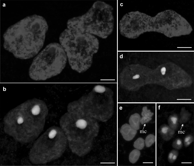 Detection of transcription in the nuclei of P. sativum var. Paloma suspensor. a, c, e DNA stained with DAPI in the polyploid nuclei ( a ), in the polyploid nucleus during the amitotic division ( c ), in the nuclei during classical cell cycle ( e ); mc—metaphase chromosomes. b, d, f The same nuclei as previously after 5-ethynyl uridine – (EU) incorporation stained with Click-iT ® RNA Alexa Fluor ® 488. Scale bar a – d − 50 µm; e, f − 10 µm