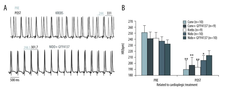 Short-term electrical recovery after GYY4137 treatment in the isolated Langendorff-perfused rat model. ( A ) Representative 5 second volume-conducted pseudo-ECG traces showing pre-treatment (Pre, light) or post-treatment (Post, dark) with cardioplegic solutions. A better preservation of heart rate (HR) and more regular cardiac activation is detected with del Nido+GYY4137 formulation than with untreated KH solution-preserved hearts. Traces are segmented after 15 minutes of registration from a single-lead electrode located at the epicardial base of the right ventricle in the Langendorff-perfused whole-heart. ( B ) Quantification of the effects of cardioplegic treatment on heart rate (HR, beats per minute) reveals significant slowing of cardiac activation, whereas heartrate-slowing is non-significantly different in the del Nido + GYY4137 treated group. * p