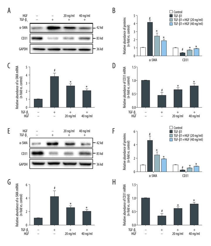 HGF attenuates α-SMA expressions and increases CD31 expression in HUVECs and HRGECs. HUVECs ( A–D ) and HRGECs ( E–H ) were incubated with 5 ng/mL TGF-β1 and/or 20 ng/mL or 40 ng/mL HGF for 48 hours. We analyzed equal amounts of protein from whole cell lysates by western blotting with antibodies against α-SMA, CD31 and GAPDH. We isolated and reversed-transcribed total RNA, and subjected the resultant RNA to quantitative real-time PCR to detect gene expression of α-SMA and CD31. We normalized the quantitative real-time PCR results to β2-macroglobulin. These are expressed as the fold-change relative to unstimulated control cells in HUVECs ( C, D ) and HRGECs ( G, H ). The relative abundance of mRNAs are presented as mean ±SD of three independent experiments. * p