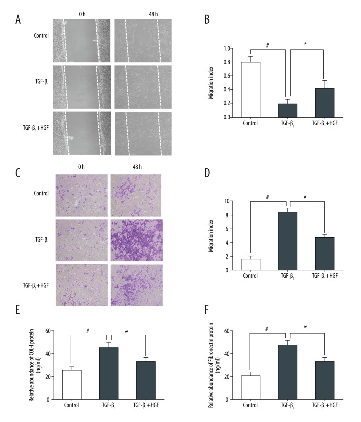 HGF weakens the motility and migration ability of HRGECs and secretion of extracellular matrix. ( A–F ) HRGECs were incubated with 40 ng/mL HGF and/or 5 ng/mL TGF-β1 for 48 hours ( A, C, E, F ). ( A, B ) We wounded HRGECs and manually counted migrated cells. The motility index is expressed as the fold-change relative to unstimulated control cells ( B ). ( C, D ) We seeded a total of 5× 10 4 HRGECs in the top chamber and stained and quantified cells that migrated through the membrane. The migration index is expressed as the fold-change relative to unstimulated control cells ( D ). We collected the supernatant of the cultured HRGECs for ELISA to determine total concentrations of collagen-I ( E ) and fibronectin ( F ). Data are presented as mean ±SD of three independent experiments; * p