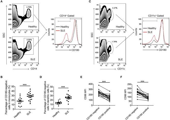 Increased percentages of CD180-negative monocytes and DCs in PBMCs from SLE patients. (A,B) Flow cytometric analysis of CD180 expression on CD14 + monocytes in PBMCs from SLE patients ( n = 19) and healthy donors ( n = 19). (C,D) Flow cytometric analysis of CD180 expression on CD11c + DCs in PBMCs from SLE patients ( n = 19) and healthy donors ( n = 19). (E) Flow cytometric analysis of CD86 expression on CD180-negative and CD180-positive monocytes population in PBMCs from SLE patients ( n = 19) and healthy donors ( n = 19). (F) Flow cytometric analysis of CD86 expression on CD180-negative and CD180-positive DCs population in PBMCs from SLE patients ( n = 19) and healthy donors ( n = 19). Error bars represent S.E.M. *** p