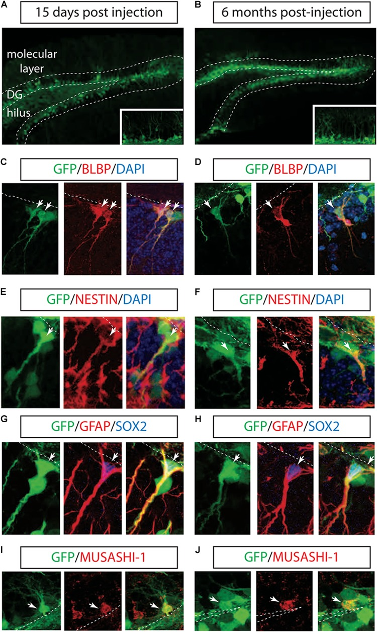 Long-term marking of hippocampal NSCs by LV PGK-GFP. LV PGK-GFP was unilaterally injected into the hippocampal DG; brain sections were analyzed 15 days (A) and 6 months (B) later. GFP expression was evident in the DG at both time points. A higher magnification view is displayed in insets (A,B) . GFP-expressing cells co-labeled with NSCs markers such as BLBP (C,D) , NESTIN (E,F) , SOX2, GFAP (G,H) , and MUSASHI-1 (I,J) (arrows). Note that some GFP-positive cells stained for SOX2 showed co-localization with radial glial cell markers such as GFAP in their processes (G,H) . DG, dentate gyrus; SGZ is marked with dotted lines.
