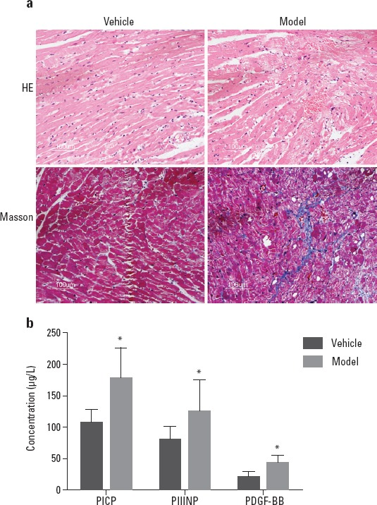 Pathological changes of myocardial tissue and serum biochemical indices in rats after ISO treatment (a) H E and Mason staining results show that myocardial collagen deposition appears in myocardial tissues. (b) ELISA results show that PDGF-BB, PICP, and PIIINP concentrations are significantly higher in ISO-treated rats than in normal control rats (* P