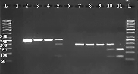 Lanes: (L) 50-bp DNA ladder; (1), Negative Control for GSTO1; (2), PCR product for GSTO1: 254bp fragment; (3 and 4), homozygote AA: 254 bp fragment; (5), heterozygote AD: 254, 186, and 68-bp fragments; (6), Negative Control for GSTO2; (7), PCR product for GSTO2: 185 bp fragment; (8 and 9), homozygote NN: 185-bp fragment; (10), heterozygote ND: 185, 122 and 63 fragments; (11), homozygote DD: 122 and 63 bp fragments; (L) 50-bp DNA ladder PCR: Polymerase chain reaction