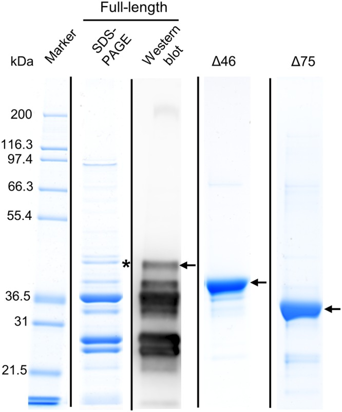 SDS-PAGE and Western-blot analyses of recombinant AtDGAT3 proteins after purification by affinity chromatography. The full-length (40.2 kDa), Δ46 (35.4 kDa) and Δ75 (31.9 kDa) protein variants of recombinant His-tagged AtDGAT3 were purified on a nickel chelating resin from the 12 000 x g supernatant of the lysate of an E. coli culture and further purified using size exclusion chromatography (Δ46). Protein concentration was determined by the Bio-Rad assay and 7.5 to 10 µg were separated by SDS-PAGE. Each variant protein is indicated by a black arrow. The identity of the band corresponding to the full-length protein was validated by Western blot and by mass spectrometry. The band (highlighted with a black asterisk) of the SDS-PAGE was cut, digested and analysed by LC-MS/MS. Vertical lines indicate delineation of the figure. Original gels and blot are displayed in Supplementary Fig. S2A–C .