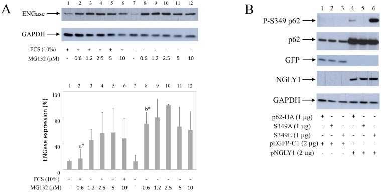 Starvation increases ENGase turnover in synovial fibroblasts Co-transfection of NGLY1 with p62 increases p62 expression in HEK293 cells. ( A ) Synovial fibroblasts were cultured with or without serum, in the presence of different concentrations of MG132 as indicated. Western blots show ENGase and GAPDH expressions in synovial fibroblast extracts. Graphics represent average of protein expression from three different experiments done with synovial fibroblasts from three different OA patients. Values were calculated as in Figure 1 . a * and b * are significantly higher than controls. a * is significantly lower from b * . ( B ) p62-HA or p62-HA mutant S349A that has no phosphorylation on Serine 349 or p62-HA mutant S349E that has constitutive mimetic phosphorylation on Serine 349 (8) are co-transfected with NGLY1 or pEGFP-C1 into HEK293 cells. Western blots show P-S349 p62, p62, GFP, NGLY1 and GAPDH expressions in HEK293 extracts.