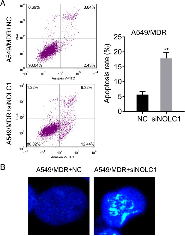 NOLC1 knockdown significantly promoted cell apoptosis in <t>A549/MDR</t> cells. a Flow cytometry analysis of A549/MDR cells stained with Annexin V and PI. The effect of siRNA-mediated NOLC1 knockdown on apoptosis was analyzed. Data were expressed as means ± SD of at least three experiments. b Hoechst staining assay was used to analyze the percentage of cells with fragmented nuclei in A549/MDR cells. ** p