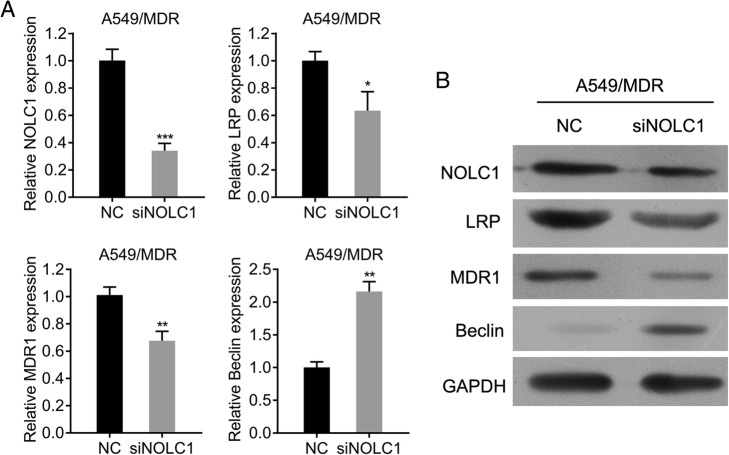 Effects of NOLC1 knockdown on drug resistance-associated expression in A549/MDR cells. The mRNA ( a ) and protein ( b ) expression of NOLC1, LRP, MRP and Beclin was determined by qRT-PCR and western blot analysis, respectively. GAPDH was used as internal controls. Data were expressed as means ± SD of at least three experiments. * p