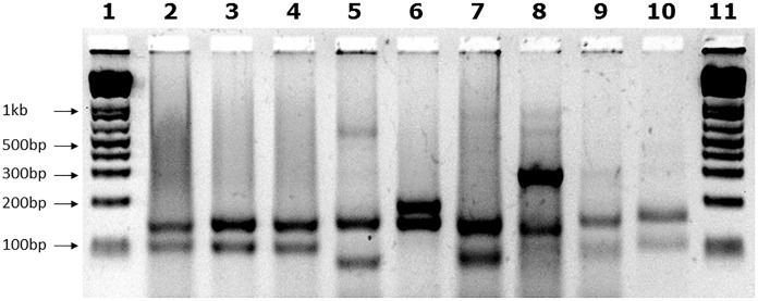 "Mbo II digest results. Agarose gel showing Mbo II digests of GAA PCR products of FRDA samples. The expected 170bp (5′) and 120bp (3′) undigested GAA-flanking fragments from normal pure GAA repeat expansion FRDA samples are shown in lanes 2, 3, and 4. These band sizes can be seen in between the 200 and 100bp fragments of the 1 Kb+ DNA ladder markers, which are loaded into lanes 1 and 11 of the gel. Lane 5 shows a large Mbo II band of approximately 600bp that was obtained from the positive interrupted GAA repeat sequence from the ""NEP"" BAC transgenic mouse that contains approximately 500 triplet repeats with the previously determined interrupted sequence of (GAA) 21 (GGAGAA) 5 (GGAGGAGAA) 70 (GAA) n ( Holloway et al., 2011 ). In addition for this positive sample, we also identified the expected 5′ flanking band of 170bp, together with a smaller band of less than 100bp that we sequenced and we showed to contain a 27bp deletion in the 3′ flanking region. Lane 6 shows an abnormal band of 200bp representing the 80bp duplication in the 3′ GAA flanking region. Lane 7 shows an abnormal band of approximately 100bp representing the 19bp deletion in the 3′ GAA flanking region. Lanes 8, 9, and 10 contain abnormal bands of approximately 300, 100, and 180bp, respectively, that are likely to contain a region of interrupted GAA repeat sequence within the body of one or other of the large FRDA GAA repeat expansions."