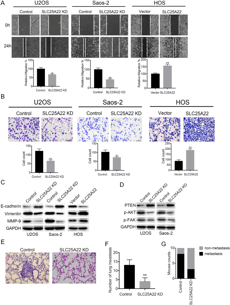 A, SLC25A22 promotes the invasion and metastasis of osteosarcoma cells by altering the PTEN signaling pathway. Wound healing assay: stable SLC25A22 knockdown U2OS, Saos-2 cells, and overexpressed HOS cells were plated in 6-well plates for wound healing experiments, and healing was observed and photographed at 24 hours. B, Cell invasion assay: stable SLC25A22 knockdown U2OS, Saos-2 cells, and overexpressed HOS cells were plated in Transwells and the invaded cells were stained with crystal violet and photographed. C, E-cadherin, vimentin, and MMP-9 protein levels were detected by Western blot in SLC25A22 knockdown U2OS, Saos-2 cells, and overexpressed HOS cells. D, PTEN, phosphorylated Akt, and phosphorylated FAK were detected by Western blot in SLC25A22 knockdown U2OS, Saos-2 cells, and overexpressed HOS cells. E, Control and SLC25A22 knockdown Saos-2 cells were used to construct a lung metastasis model, and HE staining showed 2 groups of lung metastases. F, Comparison of the number of lung metastatic cells in the control and SLC25A22 knockdown groups. G, The number of mice with lung metastases in the two groups, control and SLC25A22 knockdown lung metastasis model mice.