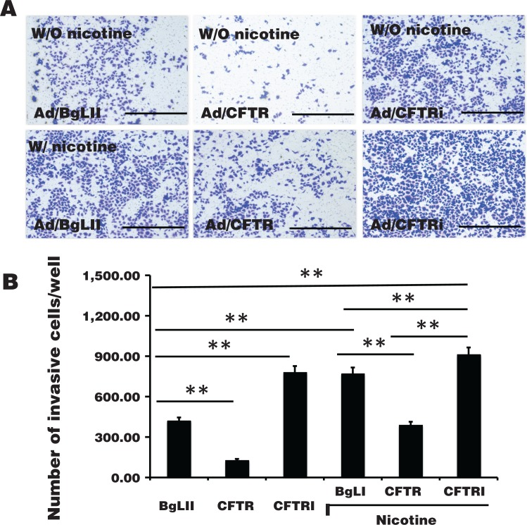 Impact of cystic fibrosis transmembrane conductance regulator (CFTR) on the invasion of A549 cells in vitro . A549 cells were infected with Ad/BgLII (BgLII), Ad/CFTR (CFTR), and Ad/CFTRi (CFTRi) for 24 hours; the capability of cell invasion was assessed by a <t>transwell</t> analysis in the absence or presence of nicotine. A, Representative images of transwell assay for A549 cells cultured in indicated conditions. B, Relevant quantification of the numbers of invasive cells in (A). An overexpression of CFTR showed an ability to significantly suppress cell invasion in A549 cells. In contrast, an exposure of nicotine or knockdown of CFTR by short hairpin RNA (shRNA) dramatically enhanced cell invasion in A549 cells. Compared between indicated groups (B), ** P