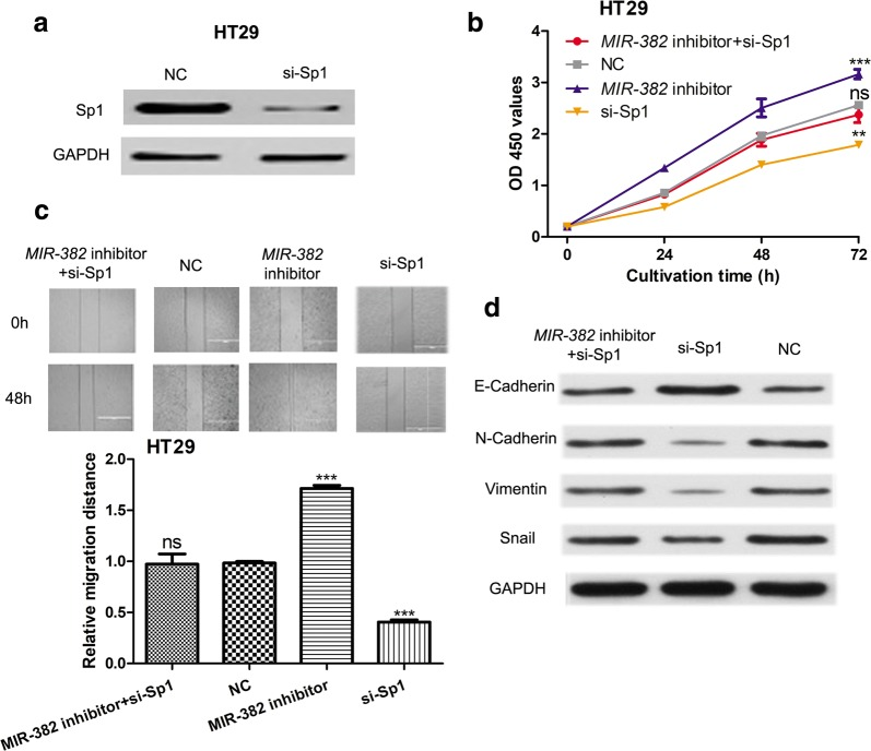 Knockdown of SP1 inhibits cell proliferation and migration. a The expression of SP1 in HT29 cell lines with synthetic siRNAs transfection. b CCK-8 assay was performed to measure cell proliferation in HT29 cell line with synthetic siRNAs or miRNAs transfection. c Wound-healing assay was performed to measure cell migration in HT29 cell line with synthetic siRNAs or miRNAs transfection. d Western blot was conducted to measure the expression of E-Cadherin, N-Cadherin, Vimentin, and Snail. (***P