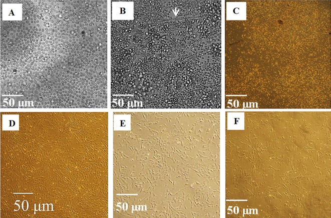 Photomicrographs of monolayer cultured canine bone marrow-derived mesenchymal stem cells (cBMSC) maintained in 10% FBS DMEM. (A) Day 1, primary culture (P0) showing non-adherent mononuclear cells immediately following seeding, (B) Day 4, P0 culture showing appearance of adherent elongated spindle-shaped fibroblastic-like cells just before removing non-adherent cells, (C) Day 10, P0 culture showing circular patches of small bipolar colony forming unit-fibroblasts (CFU-F), (D) Day 4, first passage (P1) culture showing bipolar to polygonal shaped cells, (E) Day 5, second passage (P2) and (f) Day 6, third passage (P3) showing larger polygonal shaped cells with reduced CFU-F formation. Scale Bars: 50 µ m.