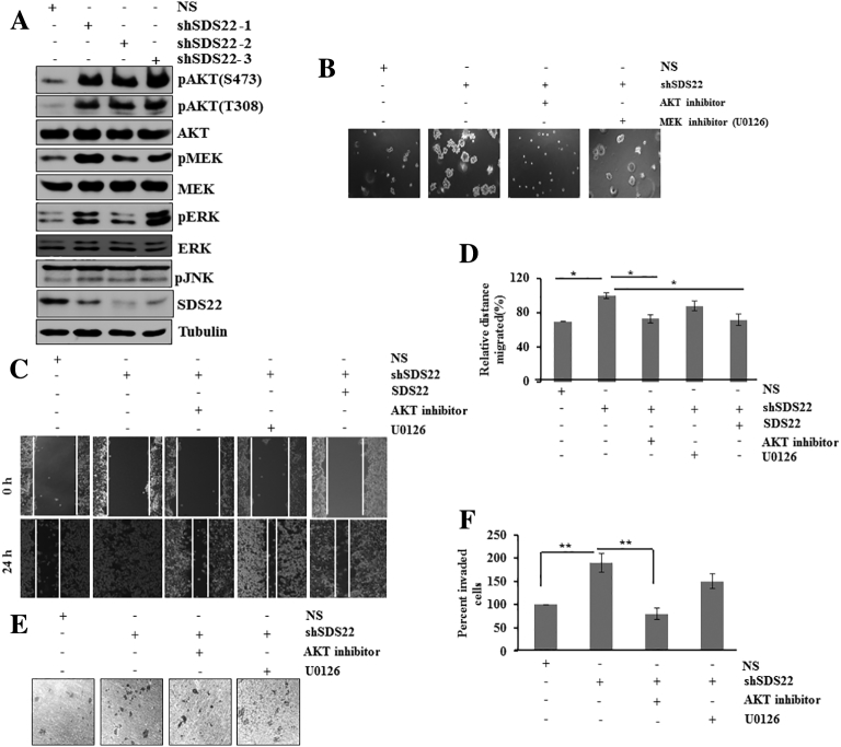 SDS22 regulates AKT and MAPK pathway at physiological level to inhibit malignancy. (A) Whole cell lysates of MCF7 cells stably expressing either scramble (NS) or unrelated SDS22 shRNAs were immunoblotted for the indicated proteins. MCF7 cells were stably knocked down using three unrelated shRNAs against SDS22 through lentivirus transduction. (B) Soft agar colony formation assay of MCF7 cells expressing either scramble (NS) or SDS22 shRNAs in the absence and presence of AKT/MEK inhibitor. (C) Scratch wound healing assay of MCF7 cells stably expressing either NS or SDS22 shRNA. Cells were grown in the presence or absence of AKT/MEK inhibitor as indicated. (D) Quantification of cell migration from scratch wound healing data of panel (C). Cell migration of NS cells at 24 hours was taken as 100%. (E) Cell invasion of MCF7 cells stably expressing either NS or SDS22 shRNA by Boyden chamber assay. Cells were grown in the presence or absence of AKT/MEK inhibitor as indicated. (F) Quantification of cell invasion from data of panel E. Cell invasion of NS cells was taken as 100%. ** P