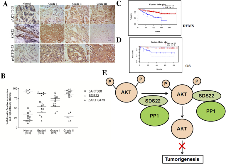 SDS22 expression is conversely correlated with active form of AKT in breast cancer patient samples. (A) Immunohistochemical analysis of SDS22, pAKT473, and pAKT308 in different grades of human breast cancer samples. (B) Statistical analysis of the average score of SDS22 and active form of AKT staining between cancer tissues and corresponding nontumor tissues, P
