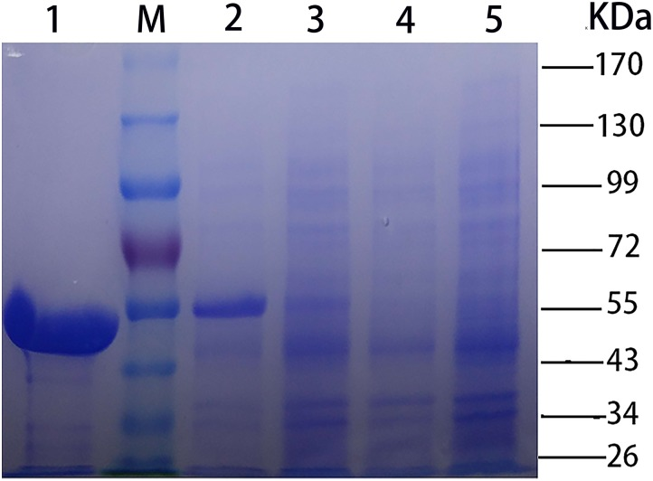 SDS-PAGE [stacking gel (5%, w/v) and separating gel (10%, w/v)] analysis of CHAO YT–02 . Lanes: M, molecular standard; 1, purified recombinant CHAO YT–02 ; 2, E. coli BL21 (DE3) harboring pET-28b- chao after induction; 3, E. coli BL21 (DE3) harboring pET-28b- chao without induction; 4, E. coli BL21 (DE3) harboring pET-28b without induction; 5, E. coli BL21 (DE3) harboring pET-28b after induction.