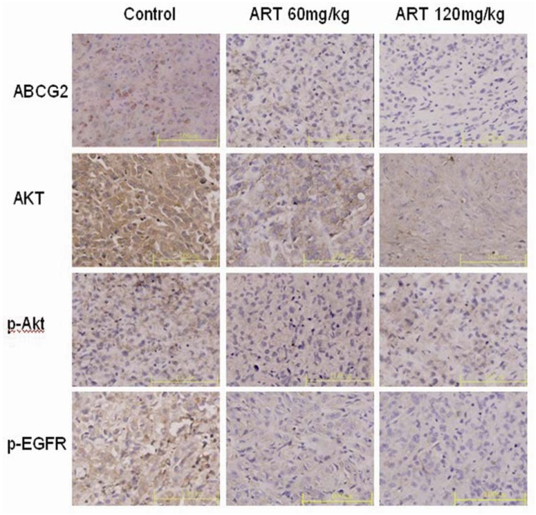 The expression of ABCG2, Akt, p-Akt and p-EGFR proteins was examined in untreated and ART-treated (60 mg·kg −1 and 120 mg·kg −1 ) xenografts. Photographs of immunohistochemical staining for ABCG2, Akt, p-Akt and p-EGFR (×40) are shown. A distinct yellow stain can be observed in the membrane and cytoplasm. The images presented are representative of three independent experiments. The data are the means ± SE from three independent experiments performed in triplicate. * p
