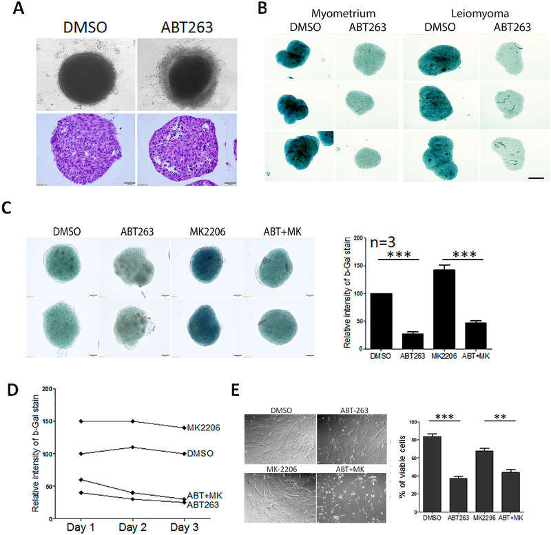 Depletion of senescent cells by ABT263, a senolytic reagent, in primary ULM spheroids. (A) Primary ULM cells were serially passaged (P2), prepared in 3D spheroids and treated with ABT263. Top panels showed cell death to form a rim of dissociated cells around spheroids. Bottom panels showed apoptosis cells in spheroids prepared in formalin-fixed and paraffin-embedded section. (B) P2 ULM spheroids were treated with DMSO and ABT263 and senescence were examined by SA-β-gal stain. Intensity of blue color represented the level of senescence. (C) ULM spheroids were treated with DMSO, ABT263, MK2206 and MK2206+ABT263 and examined by SA-β-gal stain and the level of senescence were measured based on the intensity of green color (right panel, n=3). (D) Senescent rate were measure in primary ULM spheroids from day 1 to day 3 based on intensity of SA-β-gal stain. (E). Cell viability analysis in 2D culture in primary ULM cells of control (DMSO), ABT263, MK2206 and MK2206+ABT263. Cell counts were measured and illustrated on right panel with the means ± rem. *p