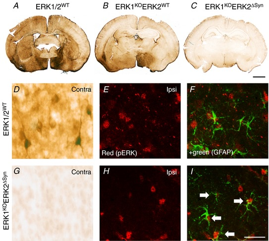 Effects of global ERK1 and neuronal ERK2 deletion on pERK immunoreactivity at 15 min post‐30 min HI insult A – C , control (ERK1/2 WT ) animal ( A ), global deletion of ERK1 and ERK2 WT (ERK1 KO ) ( B ), global ERK1 deletion and homozygous neuronal ERK2 deletion (ERK1 KO ERK2 ΔSyn ) ( C ). C , pERK immunoreactivity is almost completely reduced following deletion of both copies of ERK1 and ERK2. D–I , quantification and distribution of pERK immunoreactivity at high magnification. D , pERK staining in the contralateral pyriform cortex of ERK1/2 WT with strong neuronal reactivity and prominent dendritic staining which disappears in the presence of global ERK1 deletion and homozygous neuronal ERK2 mutation ERK1 KO ERK2 ΔSyn . E – I , residual immunoreactivity on the ipsilateral side. E and H , pERK alone. F and I , immunofluorescence double labelling with <t>GFAP</t> demonstrating co‐localisation of pERK in astrocytes, particularly pronounced in ERK1 WT ERK2 ΔSyn (white arrows). Scale bar = 25 µm [Color figure can be viewed at <t>http://wileyonlinelibrary.com</t> ]