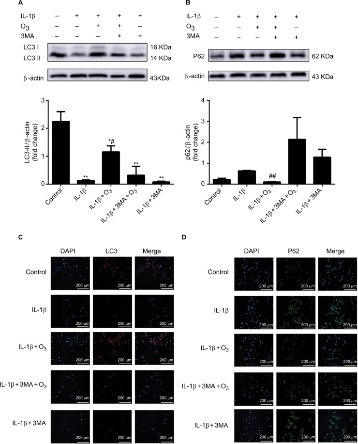 Role of ozone-induced autophagy in chondrocytes stimulated with IL-1β (10 ng/mL). Notes: Cells were treated with IL-1β for 24 hours, with or without pretreatment with the autophagy inhibitor 3MA (100 nM) for 12 hours. The levels of LC3 II ( A, C ) and P62 ( B, D ) were measured by Western blotting and immunofluorescence. The data are presented as the mean ± SD of three independent experiments.