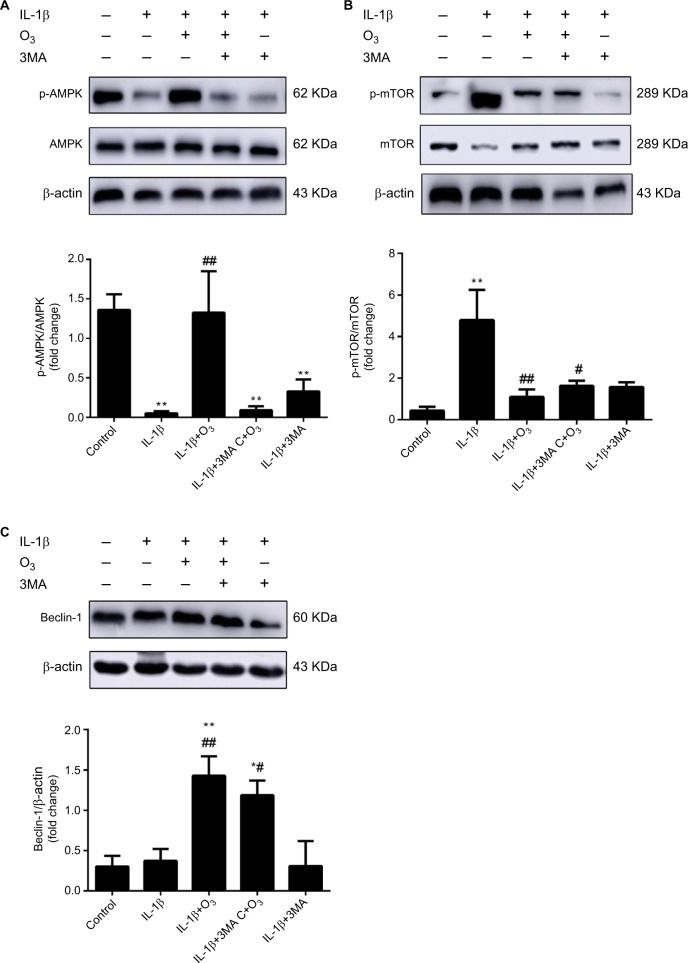 Ozone activated the AMPK/mTOR signaling pathway in chondrocytes stimulated with IL-1β (10 ng/mL), and this effect was inhibited by 3MA. Notes: Cells were treated with IL-1β for 24 hours, with or without pretreatment with the autophagy inhibitor 3MA (100 nM) for 12 hours. The levels of p-AMPK ( A ), p-mTOR ( B ) and Beclin-1 ( C ) in chondrocytes stimulated with IL-1β were measured by Western blotting. The data are presented as the mean ± SD of three independent experiments. * P