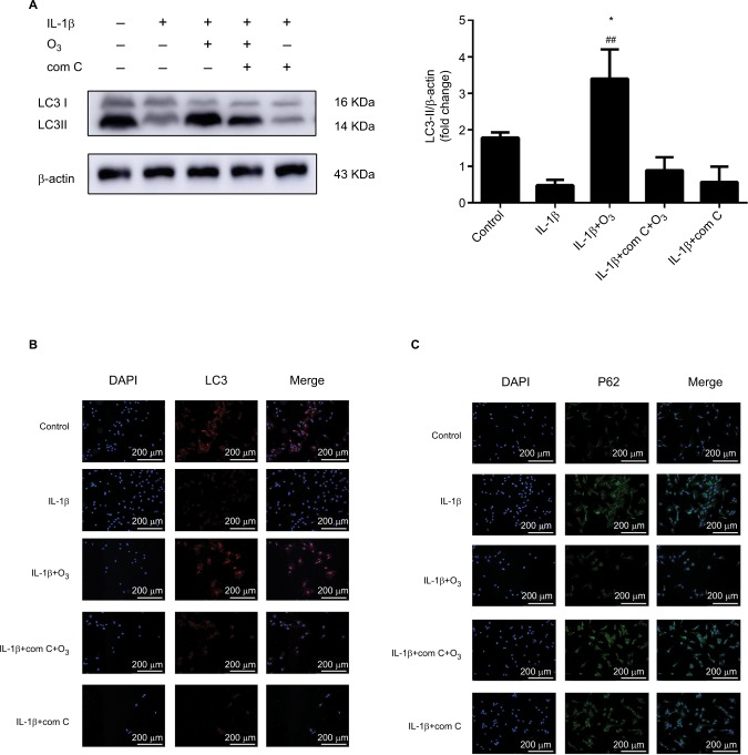 Ozone induced autophagy in chondrocytes stimulated with IL-1β (10 ng/mL), and this effect was blocked by com C. Notes: Cells were treated with IL-1β for 24 hours, with or without pretreatment with the AMPK inhibitor com C (5 µM) for12 h. The levels of LC3 ( A, B ) and P62 ( C ) were measured by Western blotting and immunofluorescence. The data are presented as the mean ± SD of three independent experiments. * P