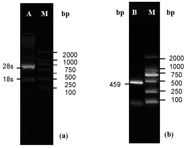 Nucleic acid electrophoresis analysis of the RNA and PCR products. ( a ) Line A, the total RNA of ginseng, 28S/18S was 2.5. Line M, DL2000 Marker; ( b ) Line B, RT-PCR products of ginseng Cu/ZnSOD, the 459 bp band was present. Line M, DL2000 Marker.