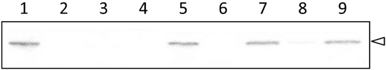 Western blot analysis of the cells grown under iron-replete and iron-depleted conditions. Cells were grown in the absence (lanes 1 to 4) or presence (lanes 5 to 9) of 0.5 mM dipyridyl and the whole cell lysate was subjected to SDS-polyacrylamide gel (10%) electrophoresis followed by visualization with an anti-OprM antibody. The position of OprM is indicated by an arrowhead. Lanes 1 and 5, PAO4290 (wild-type); lanes 2 and 6, TNP072 (Δ oprM ); lanes 3 and 7, TNP091 (Δ oprM , fpvA :: oprM ); lanes 4 and 8, TNP092 (Δ oprM , fpvA :: oprM , Δ pvdS ); lane 9, TNP092 (pPvdS).