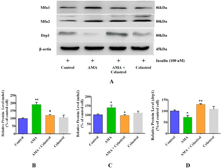 Effects of AMA and celastrol treatments on mitochondrial fusion and fission of human myotubes. Representative images of western blot analysis ( A ) on the relative expression of ( B ) mfn1, ( C ) mfn2 and ( D ) drp1 proteins were quantified with the corresponding antibodies using a densitometer. β-actin was used as loading control. Protein levels calculated by densitometry were normalized relative to β-actin signals. * p