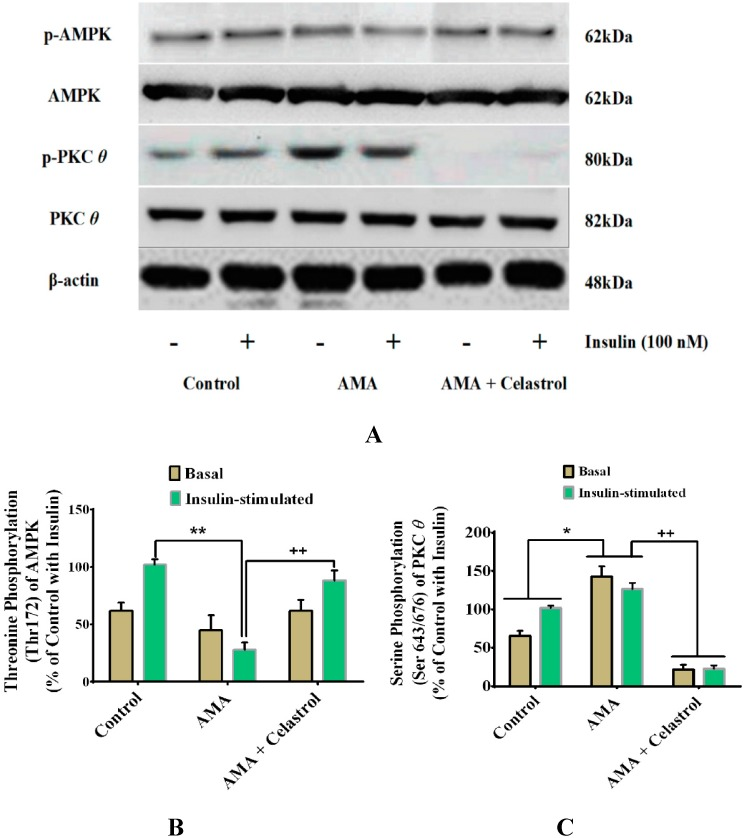 Effects of AMA and celastrol treatments on the protein expression of AMPK (Thr172) and PKC θ (Ser643/676) in human skeletal muscle-derived myoblast. Cells were cultured in media containing 30 µM AMA in the absence and presence of 15 nM celastrol for 48 h. Thereafter, cell lysates were subjected to western blot analysis ( A ). The percentage of specific and total protein phosphorylation was calculated to determine the relative level of exact amino acid residue phosphorylation ( A–C ). β-actin was used as internal protein loading control. Protein levels for each corresponding antibody obtained from densitometry were normalized to the β-actin signal. * p