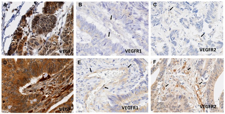 Heterogeneous <t>VEGF,</t> <t>VEGFR-1</t> and VEGFR-2 expression in colorectal cancer (CRC) endothelial cells (ECs): VEGF expression in ECs was heterogeneous with an labelling index (LI) range from 10.9 to 90% ( A , D ); Anti-VEGFR-1 immunostaining shows rare positivity with an LI range from nearly 0 ( B ) to 20% ( E ) in endothelial cells. VEGFR-2 shows a much wider immunostaining, with an LI range from 10 ( C ) to 72% ( F ). (Magnification: 400×). The arrows are pointed at vessels.