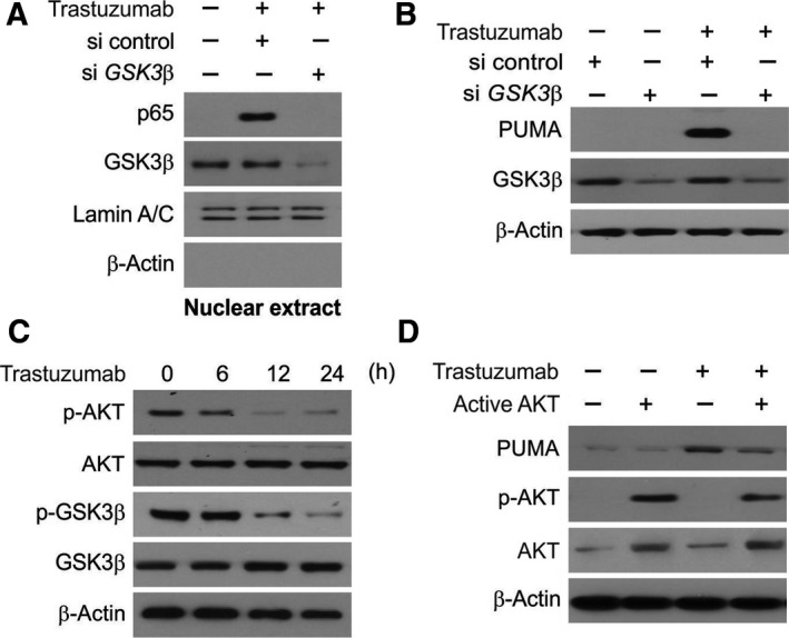The PUMA induction by trastuzumab is mediated through GSK 3β activation. (A) NCI ‐N87 cells were transfected with either a control scrambled si RNA or a GSK 3 β si RNA for 24 h and then treated with 10 μmol·L −1 trastuzumab for 6 h. Nuclear fractions were isolated from cells treated with trastuzumab and analyzed for p65 and GSK 3β expression by western blotting. (B) NCI ‐N87 cells were transfected with either a control scrambled si RNA or a GSK 3 β si RNA for 24 h and then treated with 10 μmol·L −1 trastuzumab for 24 h. GSK 3β and PUMA expression was analyzed by western blotting. (C) NCI ‐N87 cells were treated with 10 μmol·L −1 trastuzumab at indicated time point. Relative protein expression was analyzed by western blotting. (D) NCI ‐N87 cells were transfected with active AKT plasmid for 8 h and then treated with 10 μmol·L −1 trastuzumab for 24 h. PUMA , p‐ AKT , and total AKT expression was analyzed by western blotting.