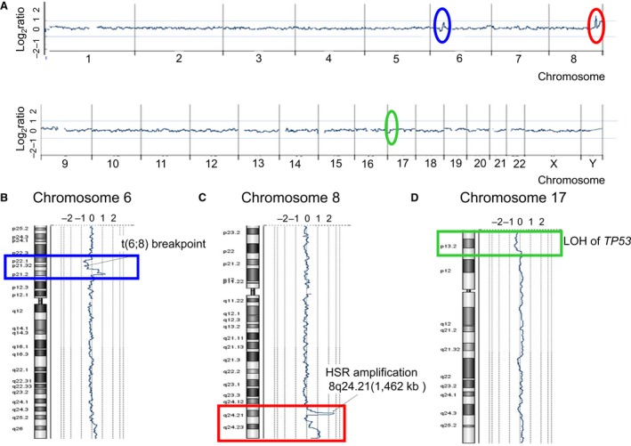 High‐resolution aCGH analysis in AMU ‐ ML 2 cells. Genomewide copy number aberrations in AMU ‐ ML 2 cells were determined using an Agilent SurePrint G3 Human CGH 2× 400K Oligo Microarray (Agilent Technologies). The median probe spacing was approximately 4.6 kb. (A) Summary of the aCGH analysis. The x ‐axis indicates the chromosome number, whereas the y ‐axis indicates the log 2 ratio (copy number aberrations). The red oval indicates a 1462‐kb highly amplified region, containing MYC and PVT 1 at 8q24.21. The blue and green ovals indicate copy number changes at 6p22 to 6p21 and at 17p13, respectively. The other copy number alterations ( CNA s) detected are summarized in Table 1 . (B) The aCGH analysis shows a 7431‐kb deletion at 6p22.1–6p21.31, where the t(6;8) breakpoint was detected by FISH , as indicated in Fig. 4 F. Blue rectangle, copy number changes at 6p22–6p21. (C) A 1462‐kb amplification detected by the aCGH analysis, containing MYC and PVT 1 at 8q24.21, where 8q24.1 HSR was detected by FISH , as indicated in Fig. 4 C. Red rectangle, copy number changes at 8q24. (D) A 7522‐kb deletion at 17p13.3–17p.13.1 detected by the aCGH analysis, where a single copy deletion of TP 53 was detected by FISH , as indicated in Fig. 4 F. Green rectangle, copy number changes at 17p13.