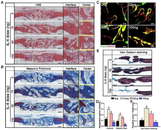 Histological evaluation of DBM regenerated bone tissue at 12 weeks after accurate and proactive immunomodulation via four different doses of IL-4 (0 ng, 10 ng, 50 ng and 100 ng). (A) H E and (B) Masson's trichrome staining further confirmed the micro-CT findings that the 0 ng group exhibited a bone tissue in-growth pattern from peripheral region, while the 10 ng and 50 ng groups showed a bone tissue in-growth pattern from the peripheral region and an in-situ bone island formation pattern in the central region. However, the 100 ng group exhibited non-union healing, and the defects were filled with loose connective fibrous tissues surrounding the minimal new bone formation. Bar = 500 μm. (C) Fluorescent images of newly formed bone double-labeled with calcein (green) and alizarin red (red). Bar = 100 μm. (D) Summary of fluorescence labeling. (E) Van Gieson staining for new bone formation (red particles). Bar = 500 μm. (F) Summary of Van Gieson staining results. For all charts, the groups designated by different uppercase letters or lowercase letters were significantly different (p