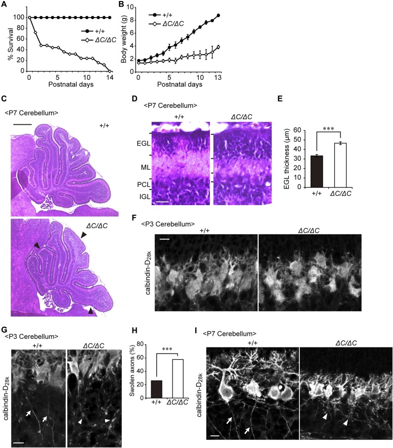 Defect of cerebellar development and malformation of Purkinje cells in Pex14 ΔC/ΔC BL/ICR mice. (A) Percentage of pups surviving at postnatal days. The survival days were based on the pups of 22 wild-type (+/+) and 25 Pex14 ΔC/ΔC ( ΔC/ΔC ) BL/ICR mice. (B) Body weights of pups at postnatal days were plotted. (C) Hematoxylin and eosin staining of the sagittal sections of the cerebellum (P7). Arrowheads indicate the shallow cerebellar folia in the cerebellum of the Pex14 ΔC/ΔC BL/ICR mouse (lower panel). Scale bar, 500 μm. (D) The sagittal section of the cerebellum at P7 was stained with hematoxylin and eosin. Scale bar, 20 μm. (E) Thickness of EGL was quantified (n = 3). (F, G) Confocal microscopy images of the sagittal sections of the cerebellum at P3 labeled with an antibody to calbindin-D 28k , a Purkinje cell marker. Arrows indicate axons of wild-type Purkinje cells and arrowheads indicate swollen axons of Pex14 mutant Purkinje cells. Scale bar, 10 μm. (H) Percentage of swollen axons was quantified (+/+, n = 54; ΔC/ΔC , n = 52). (I) Confocal microscopy images of sagittal sections of the cerebellum at P7 labeled with an antibody to calbindin-D 28k are shown. Arrows indicate axons of wild-type Purkinje cells and arrowheads indicate axonal reticular structures of Pex14 mutant Purkinje cells. Scale bar, 10 μm. *** P