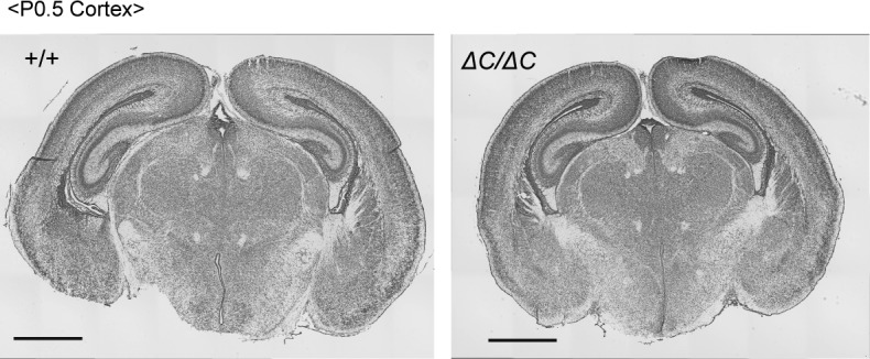Brain morphology of Pex14 mutant mice. Cresyl violet staining of coronal sections of the brains from wild-type (+/+, left panel) and Pex14 ΔC/ΔC ( ΔC/ΔC , right panel) mice (P0.5). Scale bar, 1 mm.