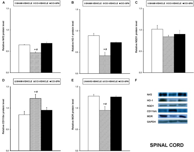 Effects of SFN on the expression of Nrf2, HO-1, NQO1, CD11b/c, and MOR in the spinal cord from animals with neuropathic pain. Effects of repetitive treatment with 10 mg/kg SFN or vehicle from days 14 to 28 after sciatic nerve injury (CCI) on Nrf2 (A) , HO-1 (B) , NQO1 (C) , CD11b/c (D) , and MOR (E) protein levels in the ipsilateral site of the spinal cord from CCI-induced neuropathic pain in mice are represented. The protein levels from Sham-operated (SHAM) mice treated with vehicle has been also represented as controls. Examples of western blots for Nrf2 (75 kDa), HO-1 (32 kDa), NQO1 (28 kDa), CD11b/c (160 kDa), and MOR (50 kDa) proteins in which GAPDH (36 kDa) was used as a loading control are also shown (F) . In all panels, ∗ indicates significant differences vs. Sham vehicle treated mice and # indicates significant differences vs. CCI plus SFN treated mice ( P