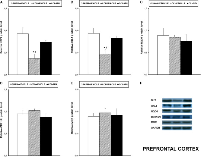 Effects of SFN on the expression of <t>Nrf2,</t> HO-1, NQO1, CD11b/c, and MOR in the prefrontal cortex from animals with neuropathic pain. Effects of repetitive treatment with 10 mg/kg SFN or vehicle from days 14 to 28 after sciatic nerve injury (CCI) on Nrf2 (A) , HO-1 (B) , NQO1 (C) , CD11b/c (D) , and MOR (E) protein expression in the prefrontal cortex from CCI-induced neuropathic pain in mice are represented. The protein levels from Sham-operated (SHAM) mice treated with vehicle has been also represented as controls. Examples of western blots for Nrf2 (75 kDa), HO-1 (32 kDa), NQO1 (28 kDa), CD11b/c (160 kDa), and MOR (50 kDa) proteins in which GAPDH (36 kDa) was used as a loading control are also shown (F) . In all panels, ∗ indicates significant differences vs. Sham vehicle treated mice and # indicates significant differences vs. CCI plus SFN treated mice ( P