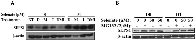 Regulation of SEPS1 by selenate and adipogenic cocktail treatments. ( A ) After 24 h pretreatment of one-day post-confluent 3T3-L1 preadipocytes with 50 µM selenate, the cells were differentiated in individual components of the adipogenic cocktail, dexamethasone (D), isobutylmethylxanthine (M), and insulin (I), and DMI. Protein samples were collected on Day 2 (D2) and were subjected to immunoblot analysis. ( B ) The samples shown in D0 are one-day post-confluent 3T3-L1 preadipocytes added in the presence or absence of selenate and MG132 for 24 h. The samples shown in D1 include 3T3-L1 preadipocytes treated with DMI with or without MG132 for 24 h, after selenate pretreatment for 24 h. The protein samples at D0 and D1 were subjected to immunoblot assay.