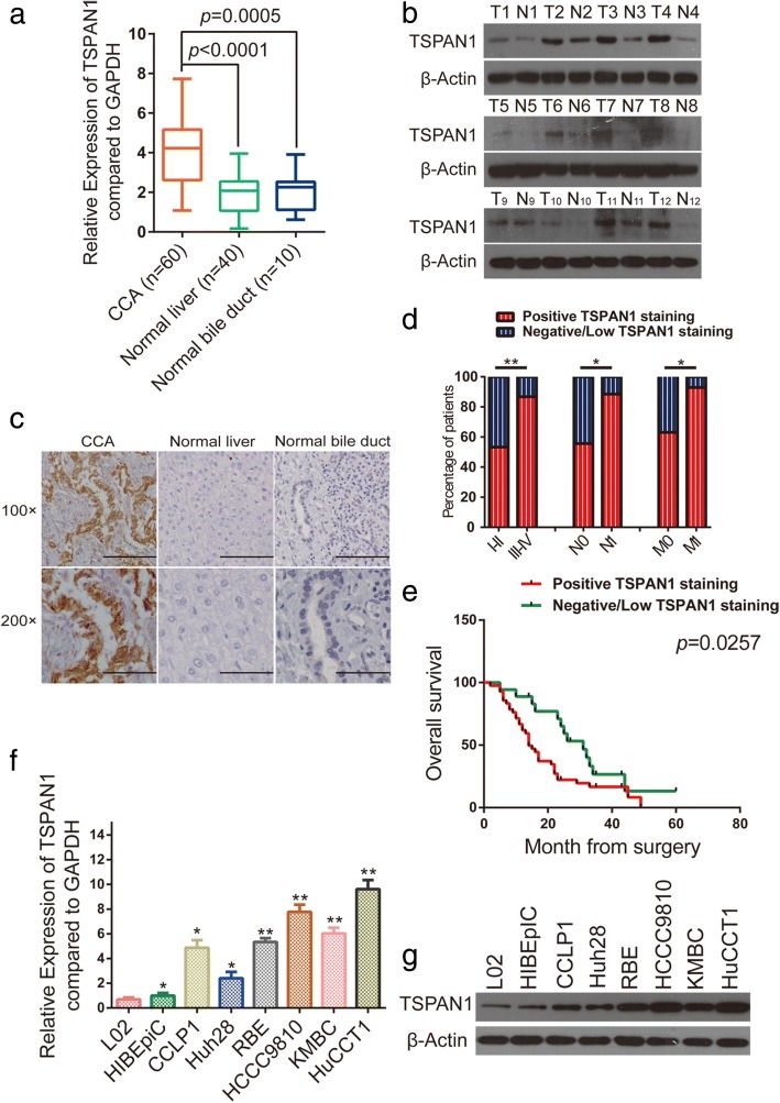 Tetraspanin 1 (TSPAN1) is frequently upregulated in human cholangiocarcinoma (CCA). ( a ) TSPAN1 mRNA level was analyzed in 60 CCA and paracancerous, 40 normal liver, and 10 normal bile duct tissue specimens using real-time quantitative reverse transcription-polymerase chain reaction (qRT-PCR). ( b and c ) Western blot and immunohistochemical (IHC) analyses of TSPAN1 protein expression in CCA tissues and adjacent normal tissues. Scale bars: 100× = 100 μm; 200× = 50 μm. ( d ) TSPAN1 positive staining was associated with poor clinicopathological features, including TNM stage (I–II and III–IV), lymph node status (N0 or N1), and metastasis status (M0 or M1). ( e ) A Kaplan-Meier analysis of overall survival (OS) in patients with different staining of TSPAN1. ( f and g ) Relative TSPAN1 levels in L02, HIBEpiC, and six CCA cells were analyzed using qRT-PCR and western blot. Data are means ± SD of three independent experiments. * p