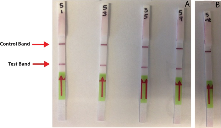 Test strip-based detection of amplification products generated by miniPCR. A dark purple control band is visible near the top of each test strip, indicating the proper functioning of the dipsticks. (A) Only samples containing PCR amplification products generated from B . malayi DNA produce a visible band (test band) below the location of the control band. (B) Negative control reactions do not display visible accumulation of tagged amplification product at the location of the test band, indicating that parasite DNA was not present in these samples.