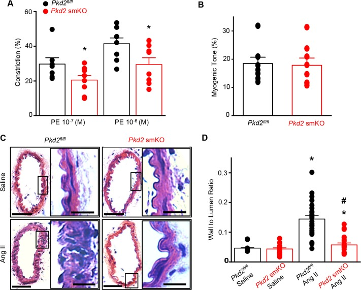 Arterial myocyte PKD2 knockout attenuates vasoconstriction and arterial wall remodeling during hypertension. ( A ) Mean phenylephrine-induced vasoconstriction in pressurized (80 mmHg) mesenteric arteries from angiotensin II-treated mice ( Pkd2 fl/fl , n = 7–8; Pkd 2 smKO, n = 8).