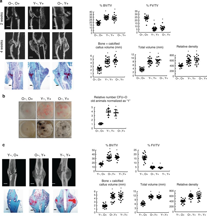 "<t>F4/80-positive</t> cells from young animals enhance fracture repair and osteogenic differentiation. a Young (Y) and old (O) bone marrow cells were sorted into F4/80 high (+) and low (−) populations using flow cytometry and re-introduced into irradiated recipient old mice. Representative micro-CT radiographic images after a tibia fracture and Safranin O stained histologic images from the tibia of an old mouse 4 weeks after the bone was fractured in mice with transplanted with combinations of F4/80 high or low fractions from bone marrow from old or young donor mice. Graphs show bone volume/total volume (BV/TV) in %; total fibrous tissue/total volume (FV/TV) in %; bone plus calcified callus volume (mm 3 ) or total callous volume (mm 3 ), or relative density from tibias 4 weeks after fracture. Each data point is shown, along with means and 95% confidence intervals for each experimental group. n = 8 males, 9 females O−,O+, n = 9 males, 9 females for Y−,Y+, n = 9 males, 8 females for O−,Y+. b CFU-O from mice in A, with numbers that form from bone marrow cells from old mice. Representative cell culture plates (Von Kossa and Alk Phosphate staining shown) and each data point as well as means and 95% confidence intervals for each group with the mean from control culture defined as ""1"" (right). c Young (Y) and old (O) bone marrow cells sorted into F4/80 high (+) and low (−) populations using flow cytometry were re-introduced into irradiated recipient young mice ( n = 6 in each group). Representative radiographic images 2 and 4 weeks after the fracture, and histologic images from the tibia of old mice 4 weeks after the bone was fractured transplanted with various combinations of F4/80 high or low bone marrow fractions. Graphs show each data point for bone volume/total volume (BV/TV) in %; total fibrous tissue/total volume (FV/TV) in %; bone plus calcified callus volume (mm 3 ), total callous volume (mm 3 ), or relative density. Data are shown as means and 95% confidence intervals. n = 11 males, 10 females for Y−;O+, n = 10 males, 10 females for O−:Y+, n = 10 males, 11 females for Y−;Y+. An asterisk over a data point shows a significance p"