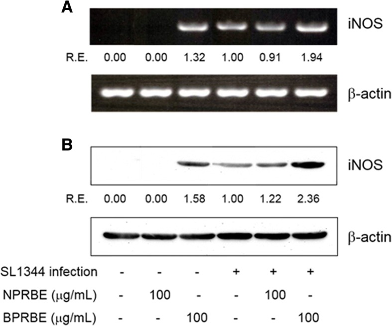 Effects of BPRBE on iNOS gene expression in S. Typhimurium-infected macrophages. a iNOS mRNA expression profiles assessed by RT-PCR. RAW 264.7 cells were cultivated with or without BPRBE for 24 h. The cells were then infected with S. Typhimurium SL1344 for 8 h. After infection, total RNA was purified and an iNOS mRNA expression profile was determined using RT-PCR analysis. b Assessment of iNOS protein expression profiles by Western blot analysis. RAW 264.7 cells treated with BPRBE for 24 h and then infected with S. Typhimurium were lysed and the iNOS protein in the cell lysate was then identified by Western blotting using rabbit anti-mouse iNOS polyclonal antibody. The relative proportions of iNOS mRNA and polypeptide are expressed as the R. E. (relative expression) values calculated from iNOS/β-actin gene expressions. Figures represent results from at least three individual experiments